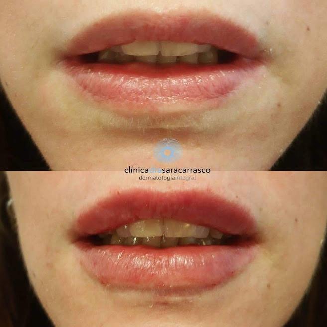 correcion-cicatriz-con-acido-hialuronico