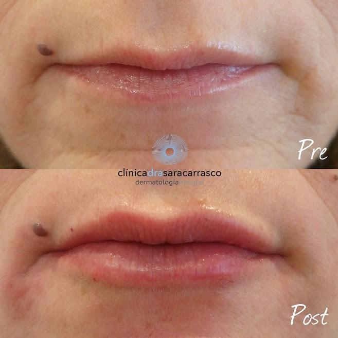 labio-asimetrico-y-delgado