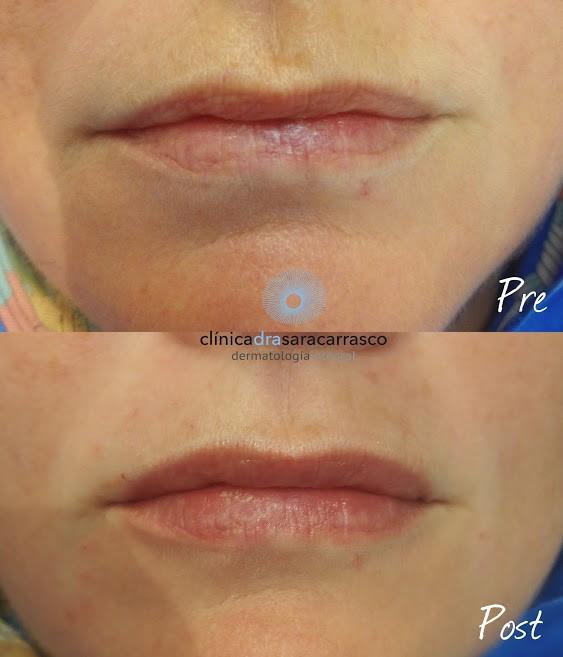 resultado-de-asimetria-labial-dra-sara-carrasco