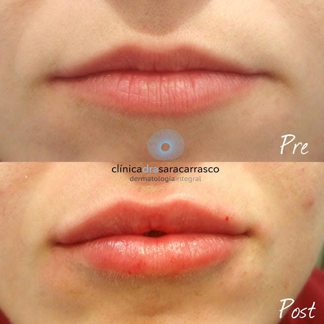 Ácido hialuronico en labios antes y después
