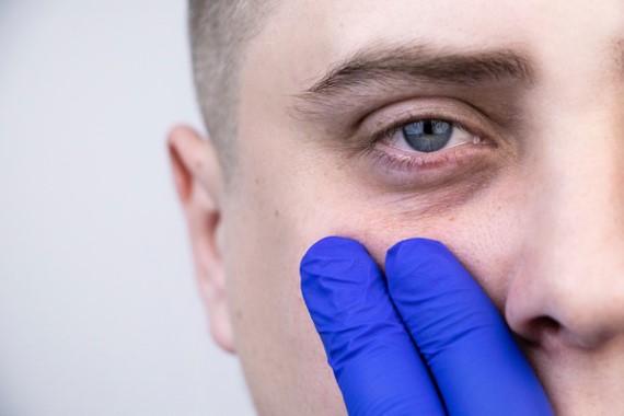 tratamiento para la ojera bilbao